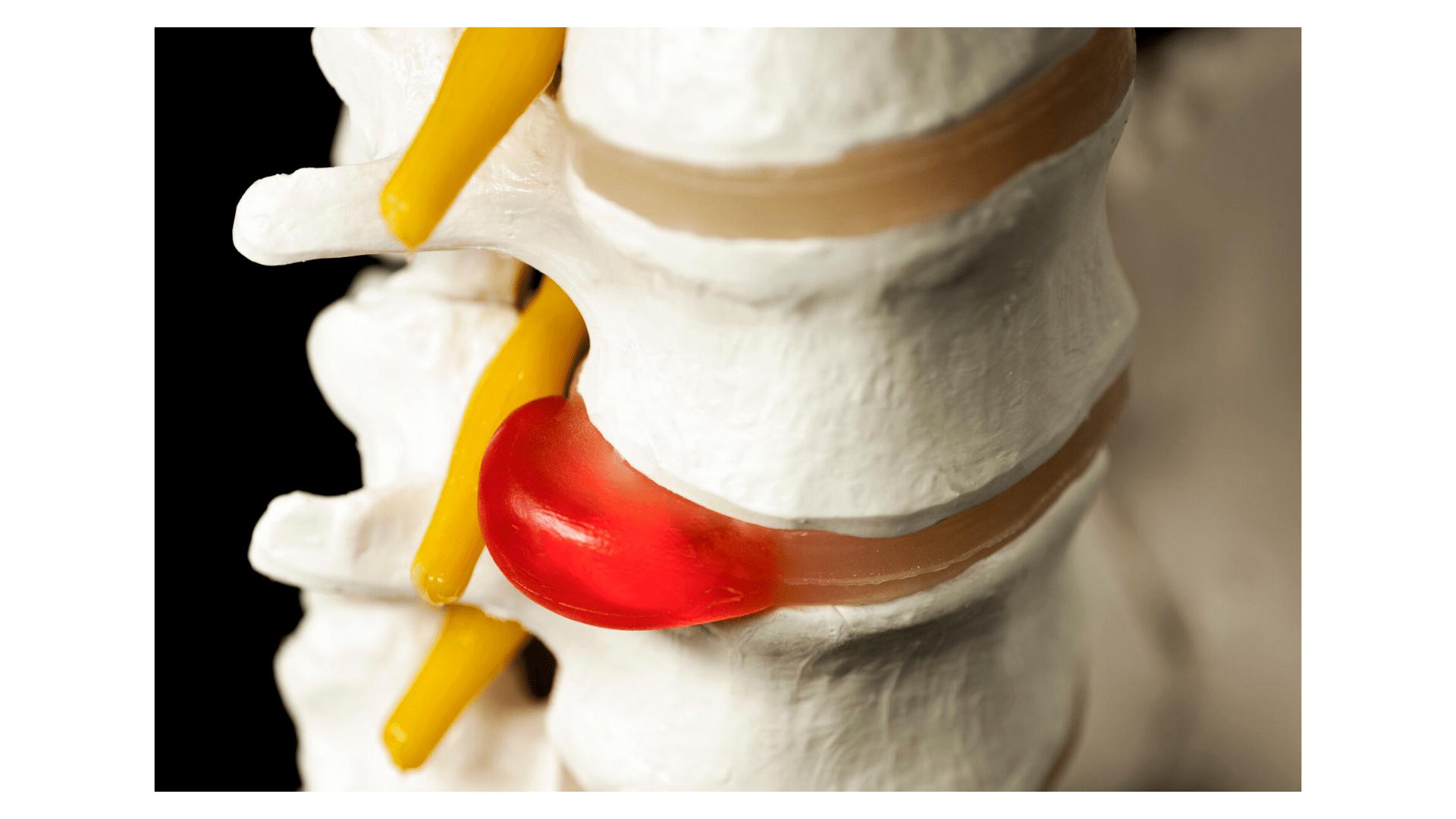 Cum doare hernia de disc